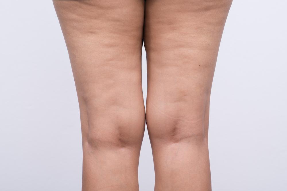 下半身が太りやすい方へ<原因を知って、下半身太りを解消!>B-fit静岡下半身ダイエット専門整体サロン